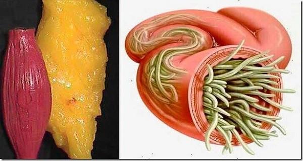 gyógyítja a parazitákat a testben
