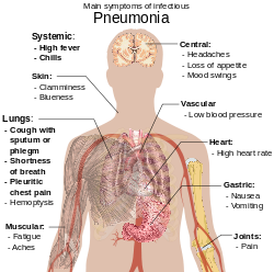 parazita gyógyszerek az emberi test tünetei)