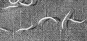 pinworms az emberi testben