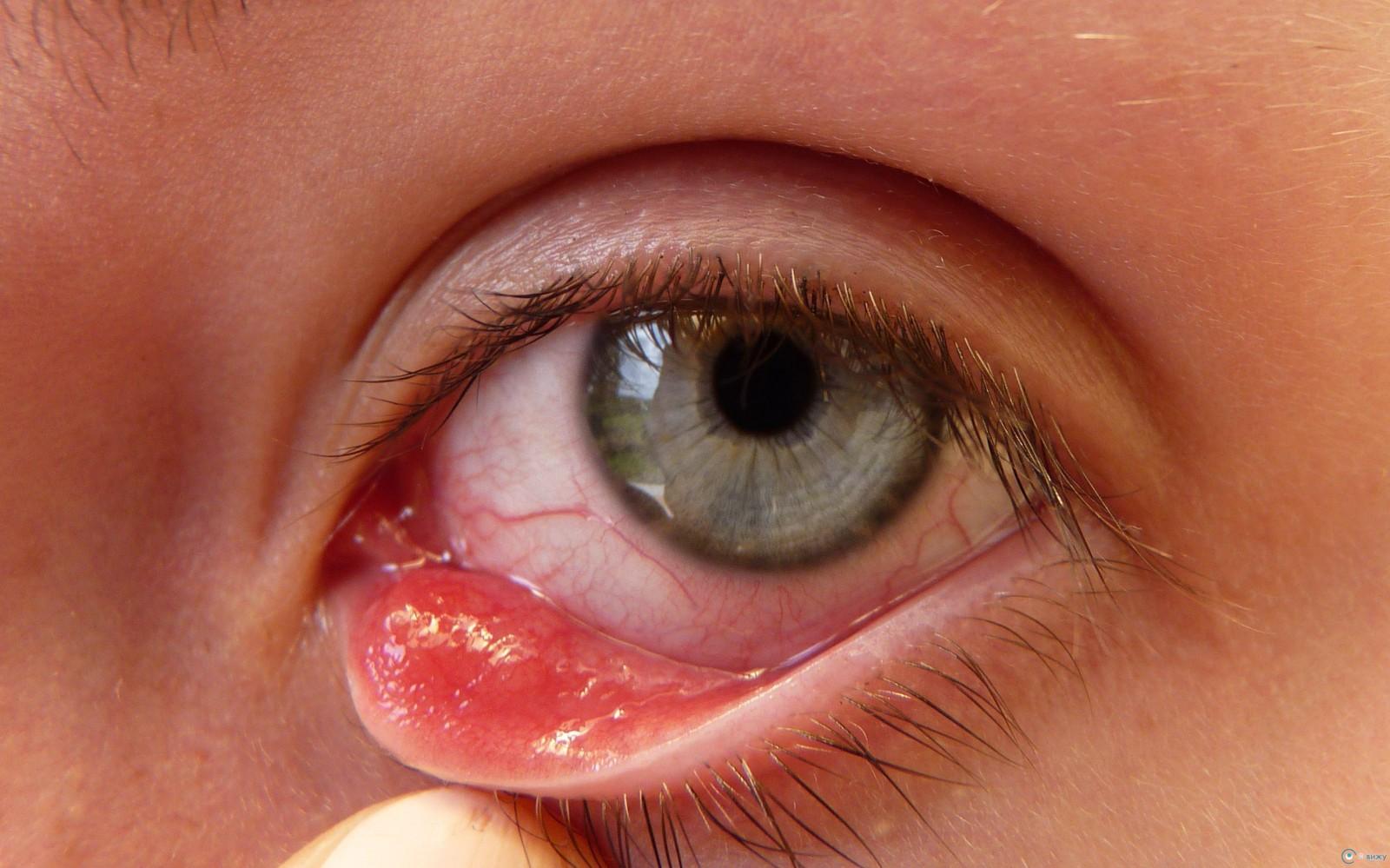 Az emberi szem helmintjai Tudod, hány megapixeles az emberi szem? | Az online férfimagazin