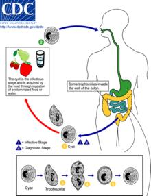 Milyen betegség a giardiasis?, Giardiasis jelentese