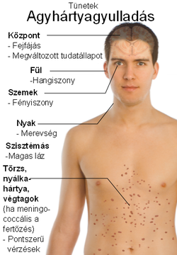 Orsóférges fertőzés