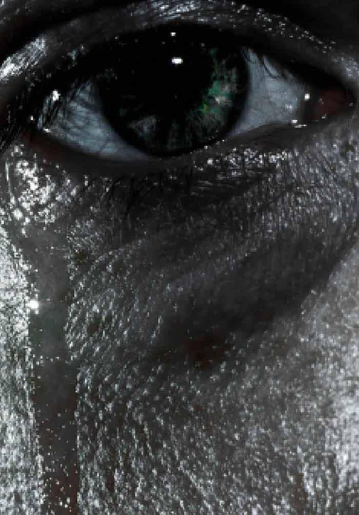 giardia ocular)