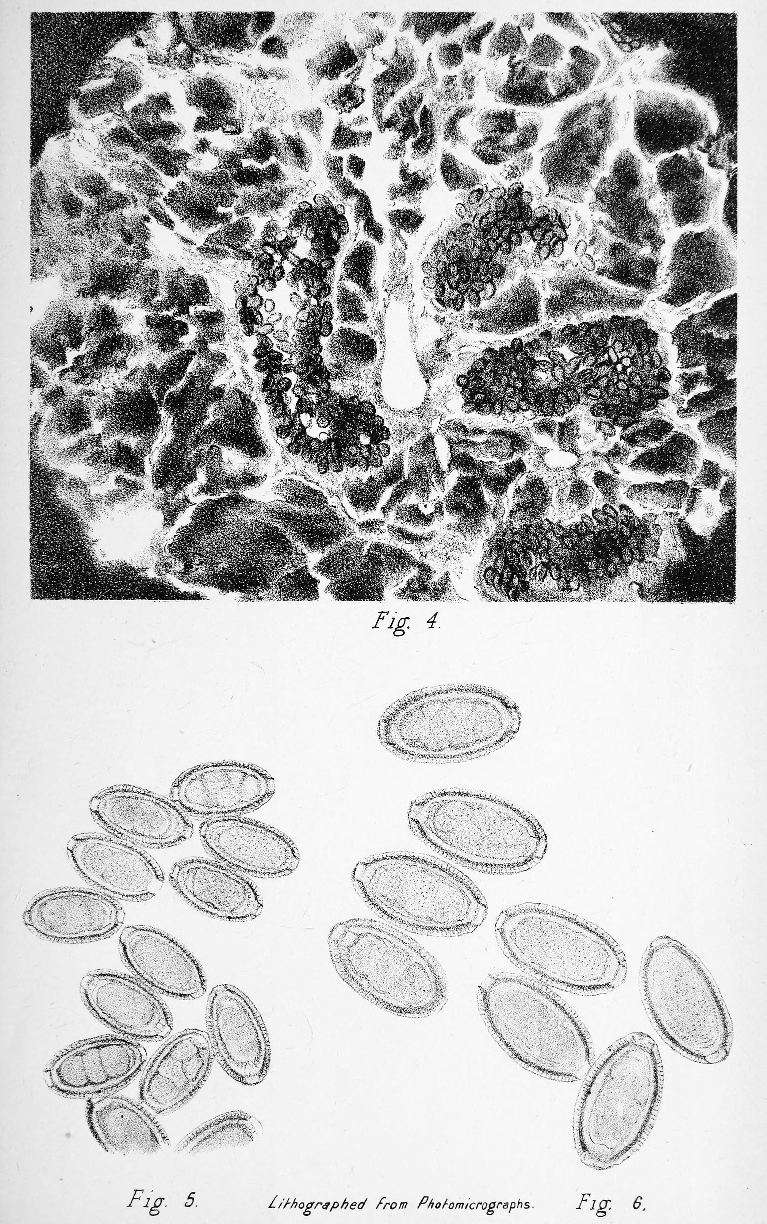 Orsóférges fertőzés – Wikipédia