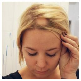 A foltos hajhullás kezelése