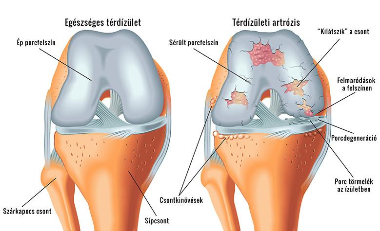 giardiasis ízületi fájdalom