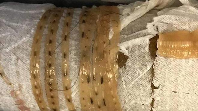 szarvasmarha galandféreg - Diagnosztika
