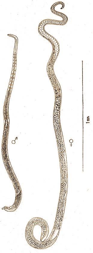 bélféreg szine hús által terjesztett helminthiasis