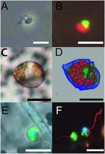 cysticercoid törpe szalagféreg