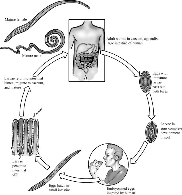 aszcariasis trichocephalosis