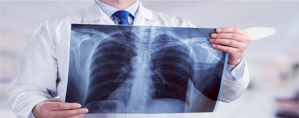 tüdő paraziták kezelése