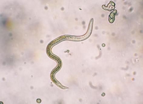 les parasites intestinaux de l homme