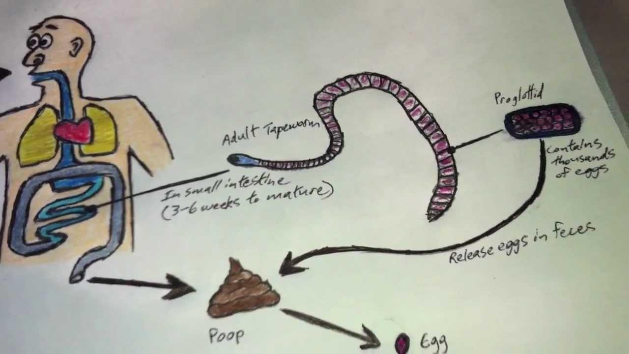 Halgalandféreg (Diphyllobothrium latum) fertőzés