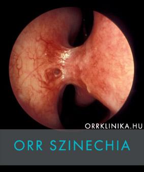 paraziták az orr garat kezelésben