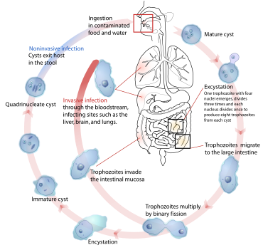 Enterobiasis (pinworms) - Hasnyálmirigy-gyulladás