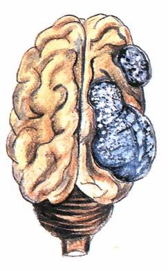 Az egyik legintenzívebb emberi agyi parazita kioperálása! +18 Videó erős idegzetűeknek! | Hídrotosvizsla.hu