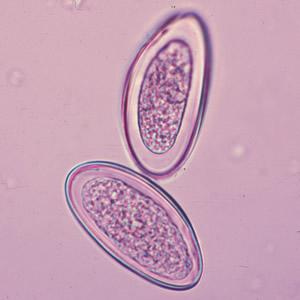 Az enterobiosis pinworms)