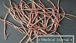 Pinworms felnőtteknél – kezelés, tünetek,tabletták, gyógyszerek