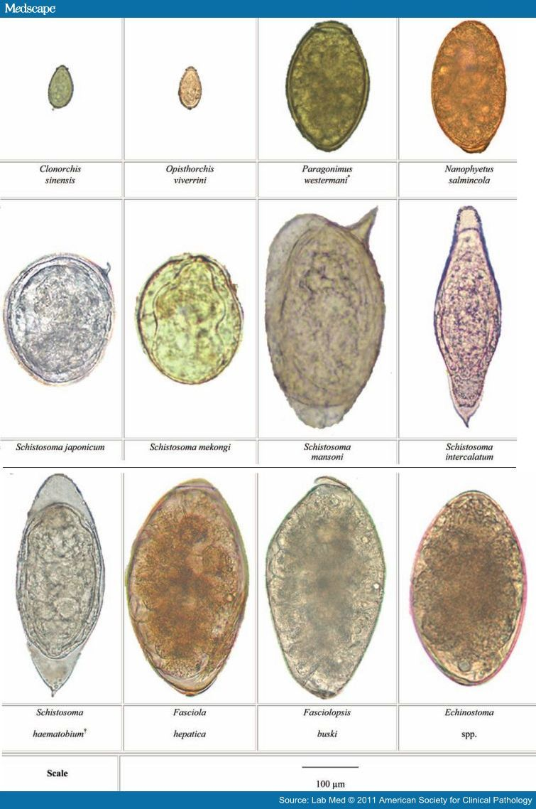 fascioliasis tojások