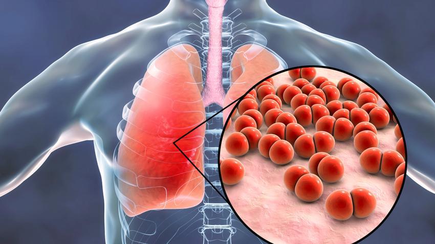 fertőzés tünetei