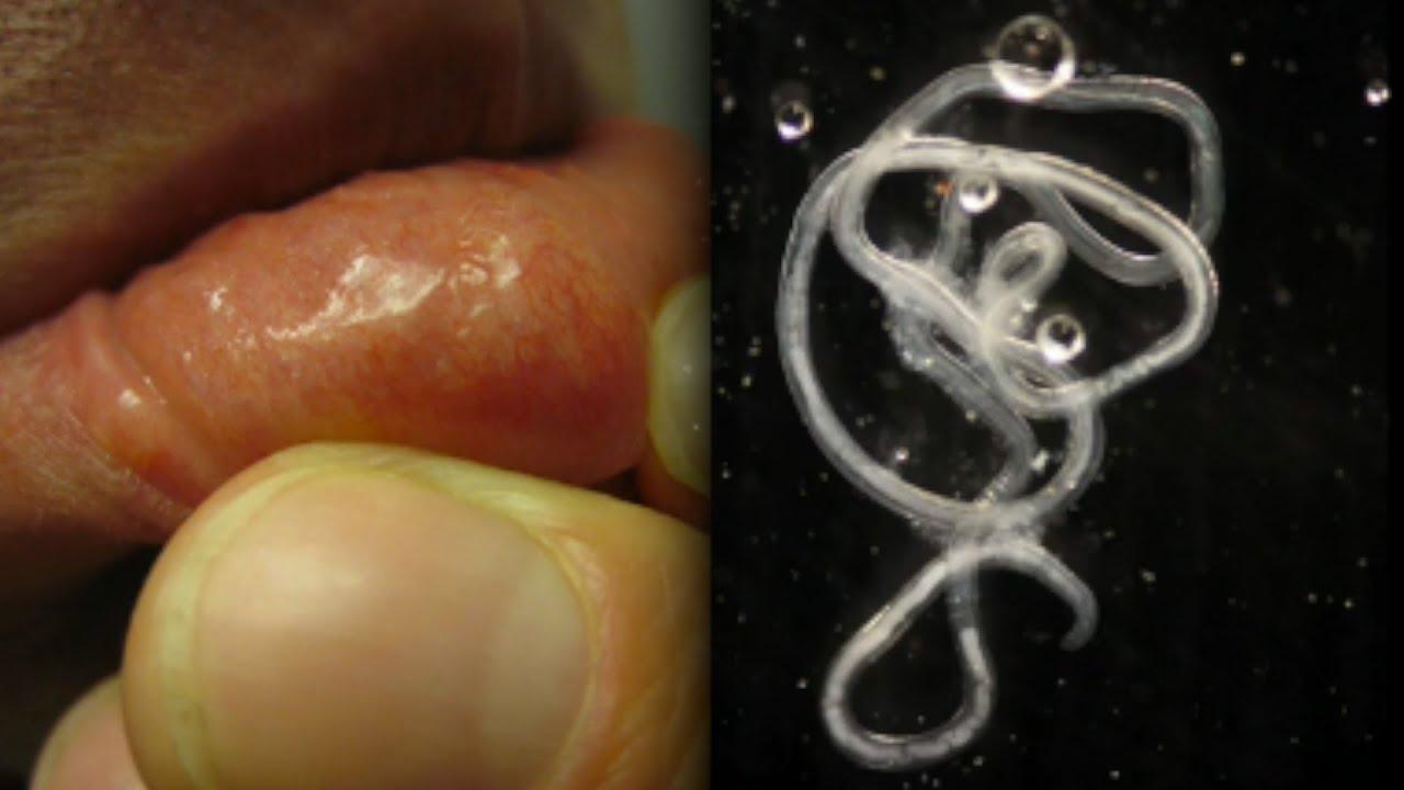 fekete drotféreg bél paraziták példák