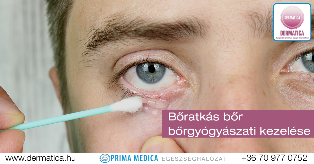 parazita a szem tünetei és kezelése