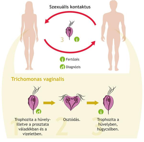 parazita fertőzés tünetei