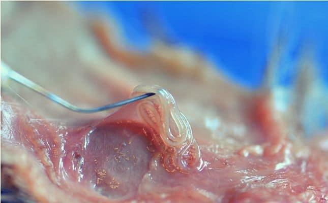 pinworm férgek és hogyan kell kezelni őket giardia u kotow leczenie