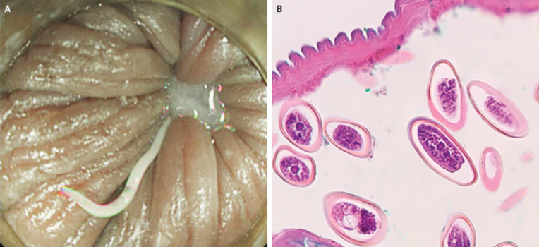 Pinworm tojás érik belül, Milyen hőmérsékleten halnak meg a gömbférgek