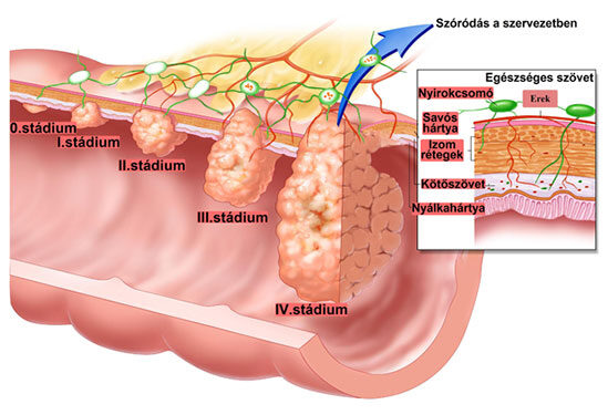 a vakbél rosszindulatú daganata