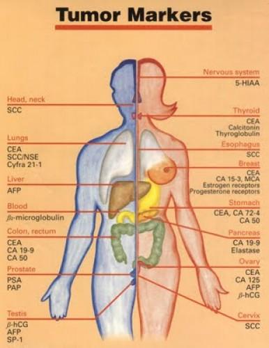 vakbél rosszindulatu daganata)