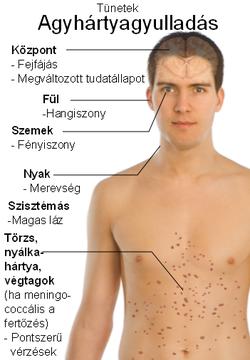 a helmint fertőzésekre jellemző tünetek