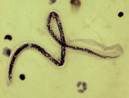 parazita rendszer
