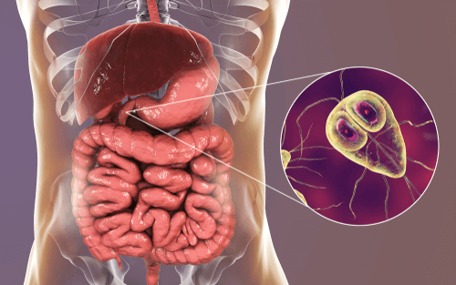 giardia symptoms and weight loss)