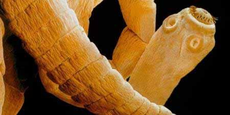 emberben élősködő szalagféreg jelei)