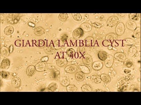 giardia on microscope