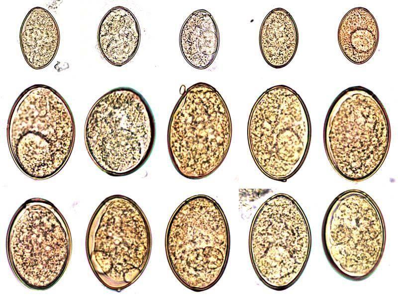 helminth tojások a talajban)