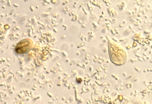 giardia cysts in stool treatment