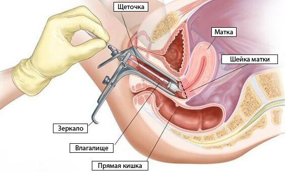 hogyan kell kenet venni a nőgyógyászatban)