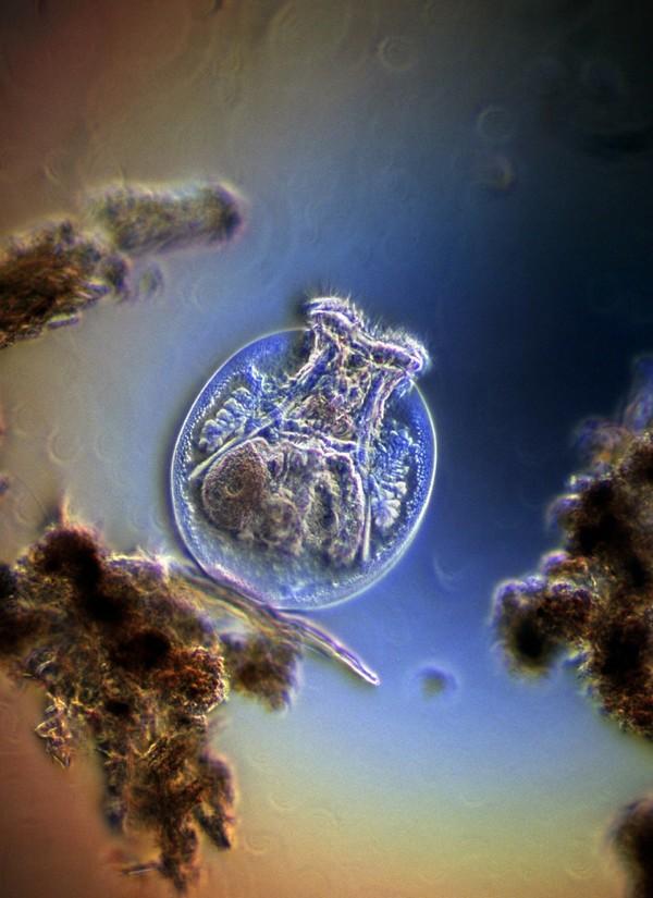 az emberi kerekesférgek betegséget okoznak