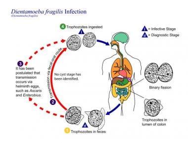 helminth inváziós diéta)