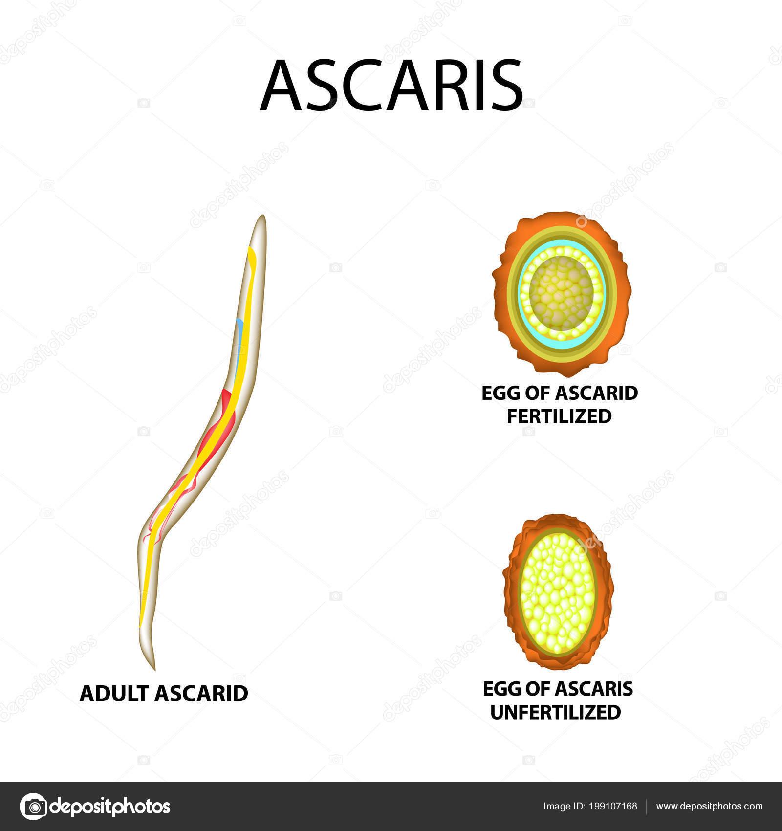 Ascaris: a fotó, hogy az emberi ascaris hogyan néz ki - Kezelés
