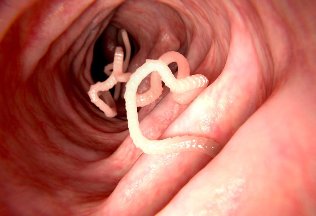 paraziták az emberi tüdő kezelésében