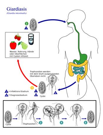 giardia mensch symptome