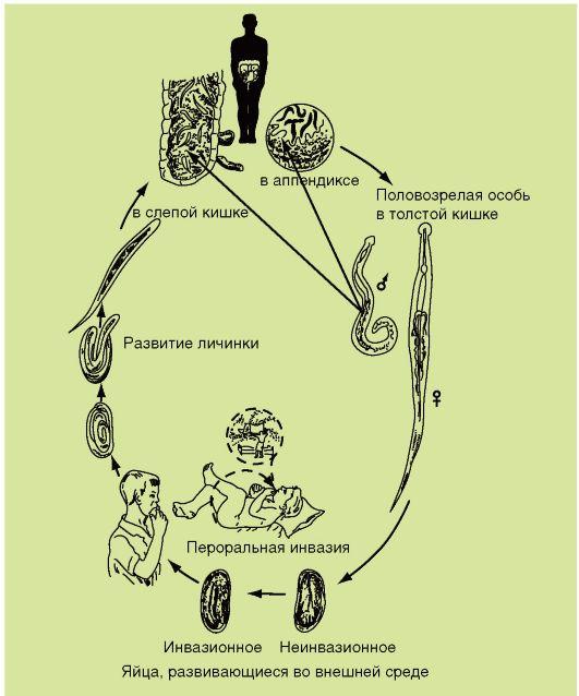 trichocephalosis ciklus)