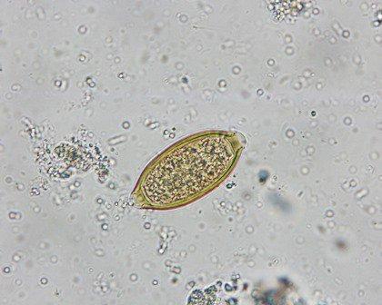 pinworm lamblia