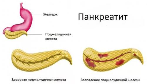 paraziták a hasnyálmirigy tünetei és kezelése