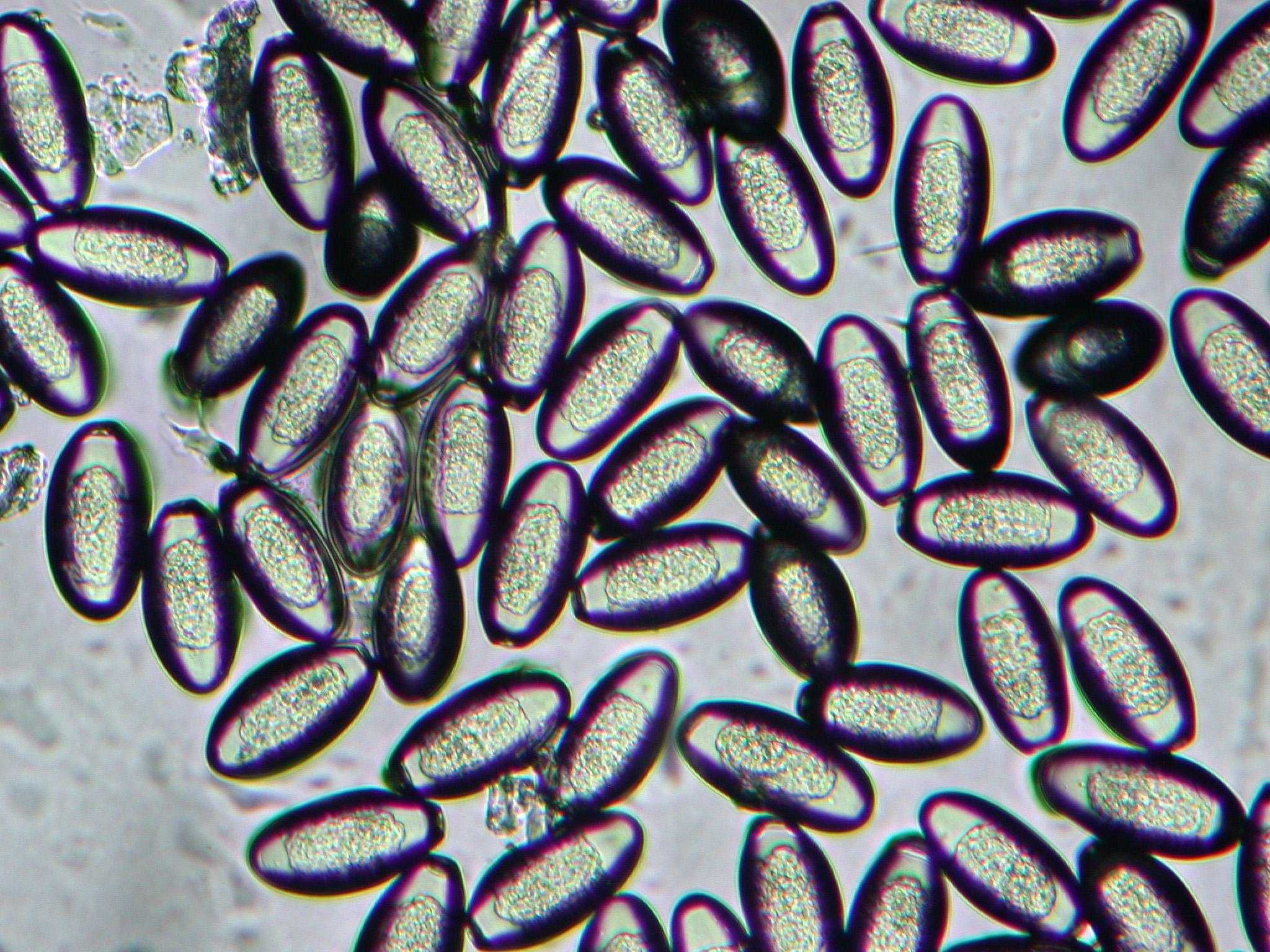 A pinworms tabletták felnőttek és gyermekek számára - Szövődmények March