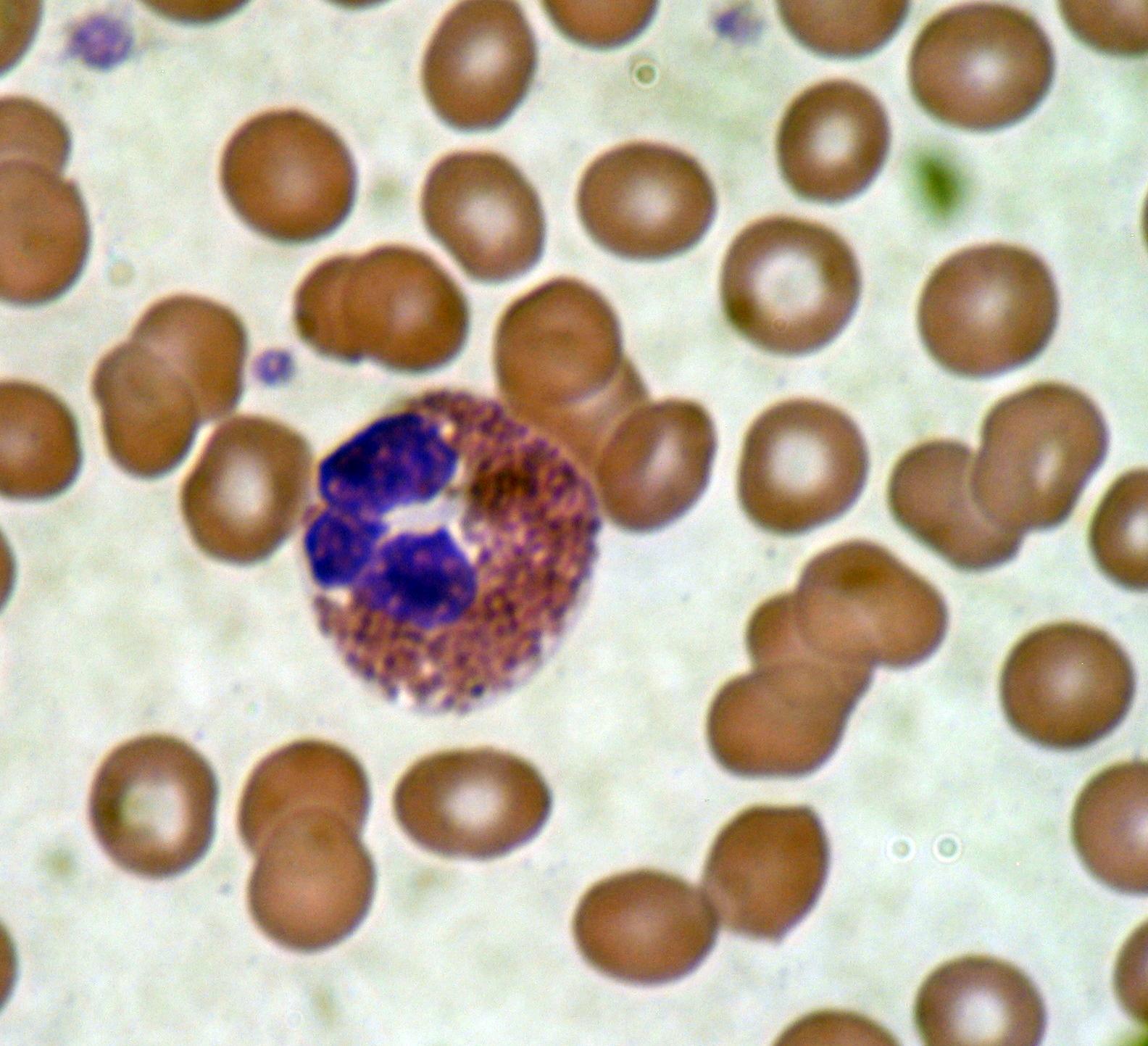 Eozinofil granulocita | nlc