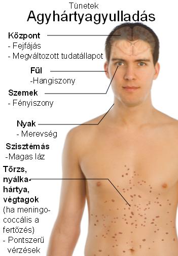 férgek kezelése ózonterápiával paraziták és szimbólumok